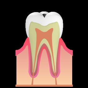 エナメル質 むし歯:C1