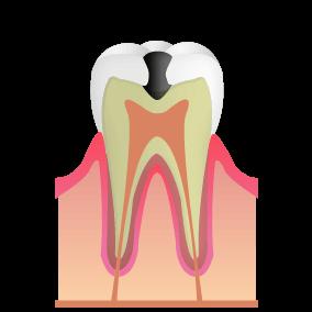 象牙質 むし歯:C2