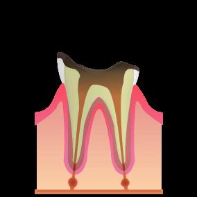 根に達したむし歯:C4